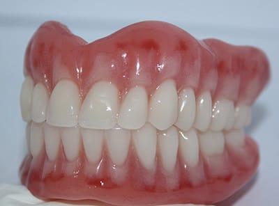 Immediate Replacement Dentures Sunshine Coast