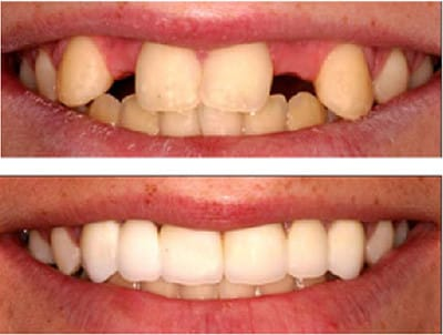 Immediate Dentures before and after