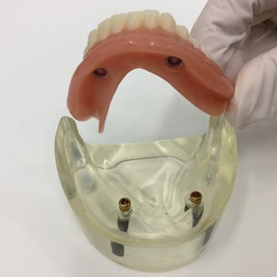 Implant Retained Denture example