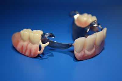 Partial Dentures by Advance Oral Sunshine Coast